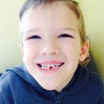 jed without a tooth